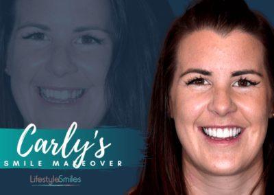 Carly's Smile Makeover in Melbourne