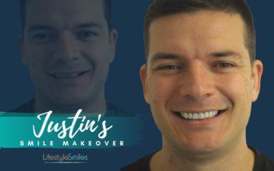 Justin's Smile Makeover in Cheltenham