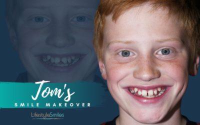 Tom's Composite Bonding in Elsternwick
