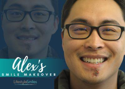 Alex's Smile Makeover in Carnegie
