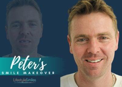 Peter's Porcelain Crowns Treatment in Highett