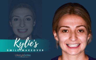 Kylie's Invisalign Treatment in Hampton