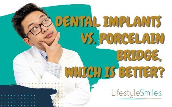 Dental Implants vs. Porcelain Bridge, which is better?